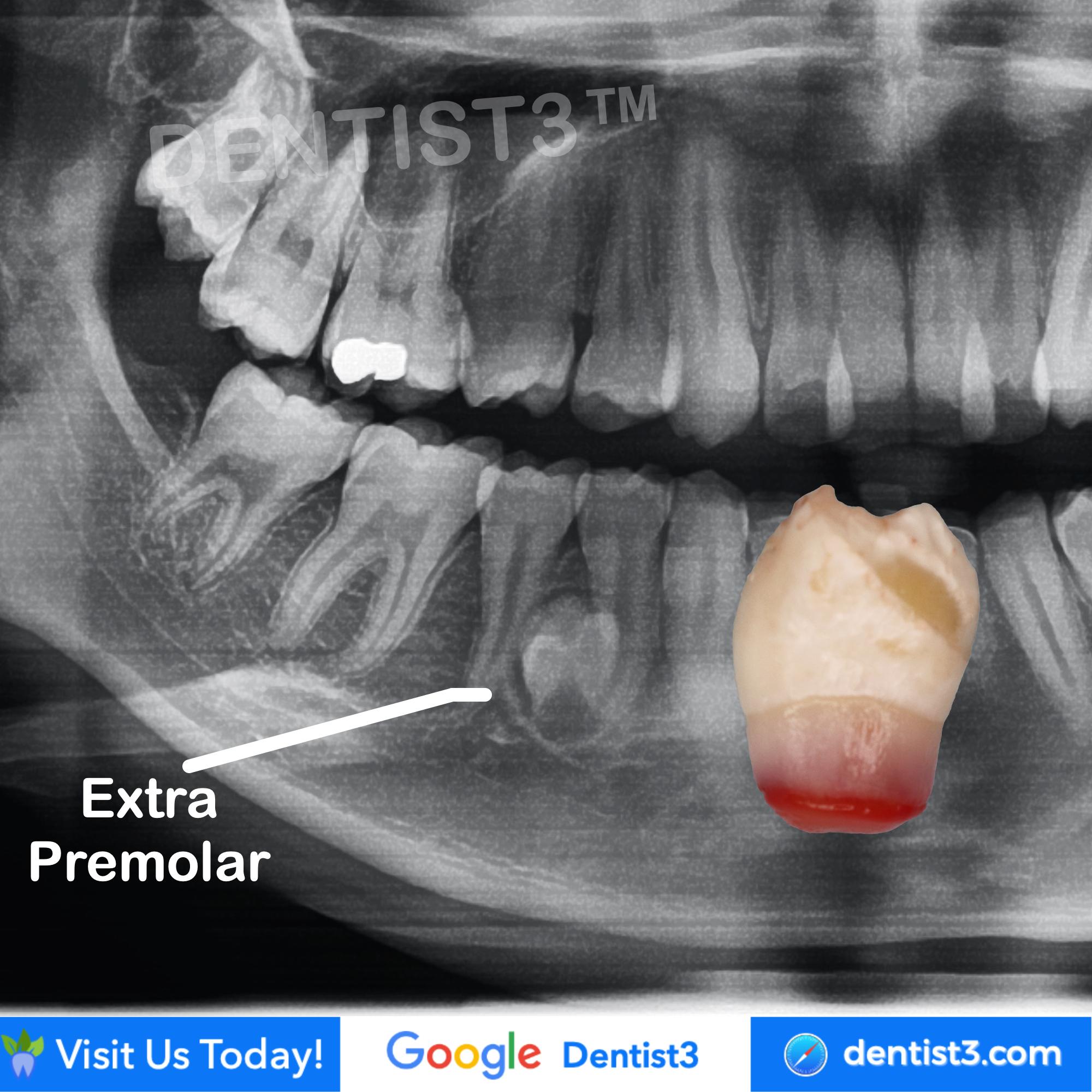 impacted-tooth.jpg
