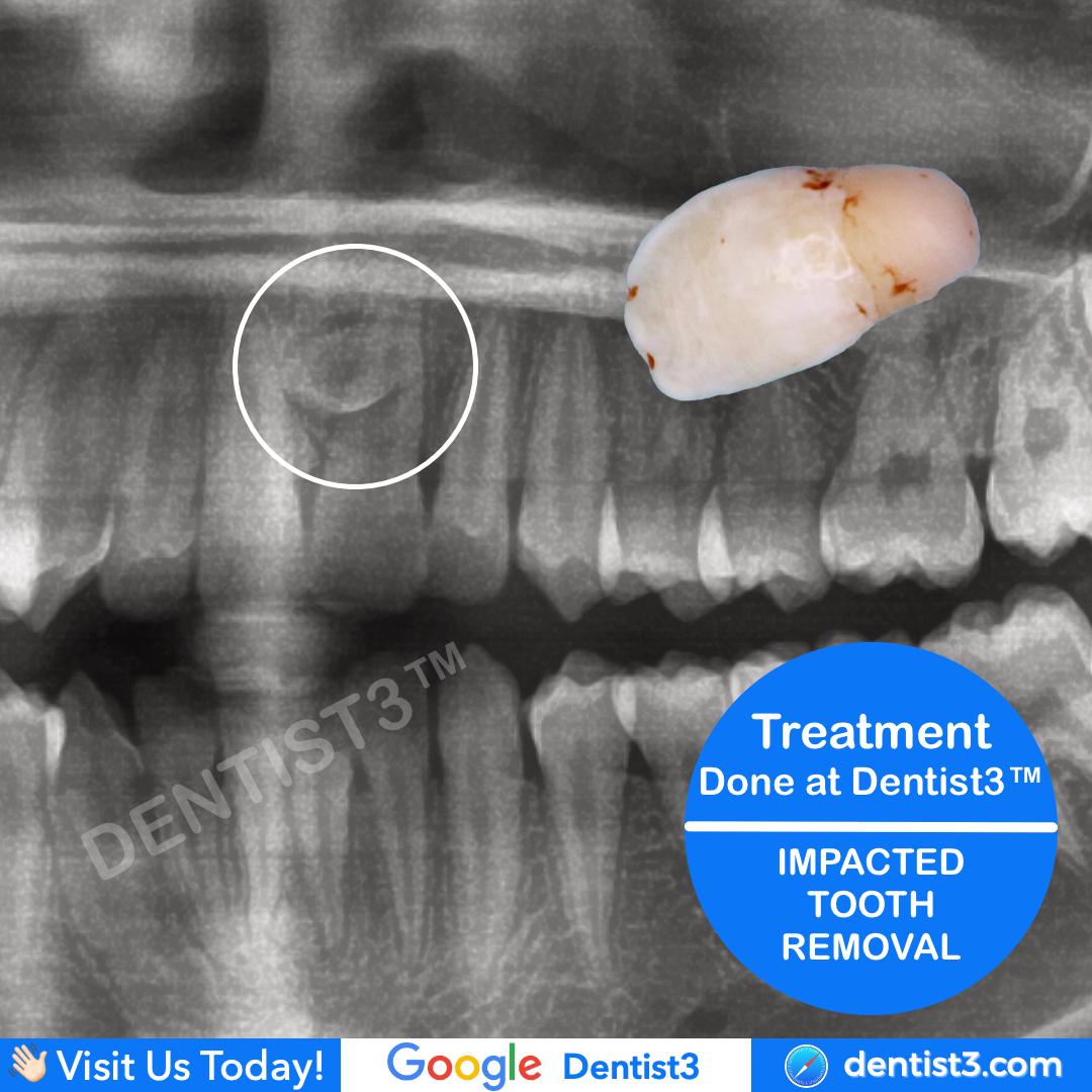 impacted---tooth.jpg