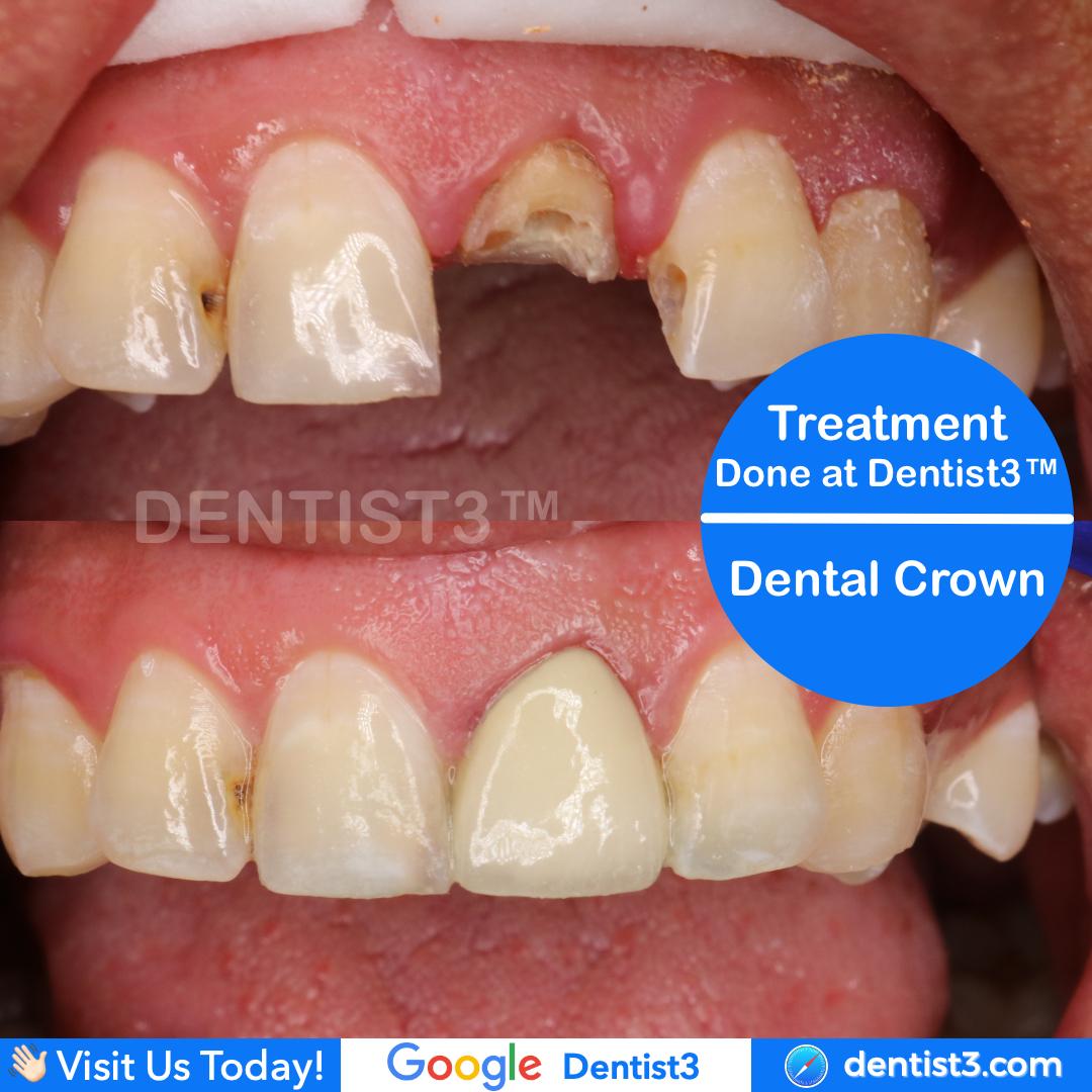 crown-patient.jpg