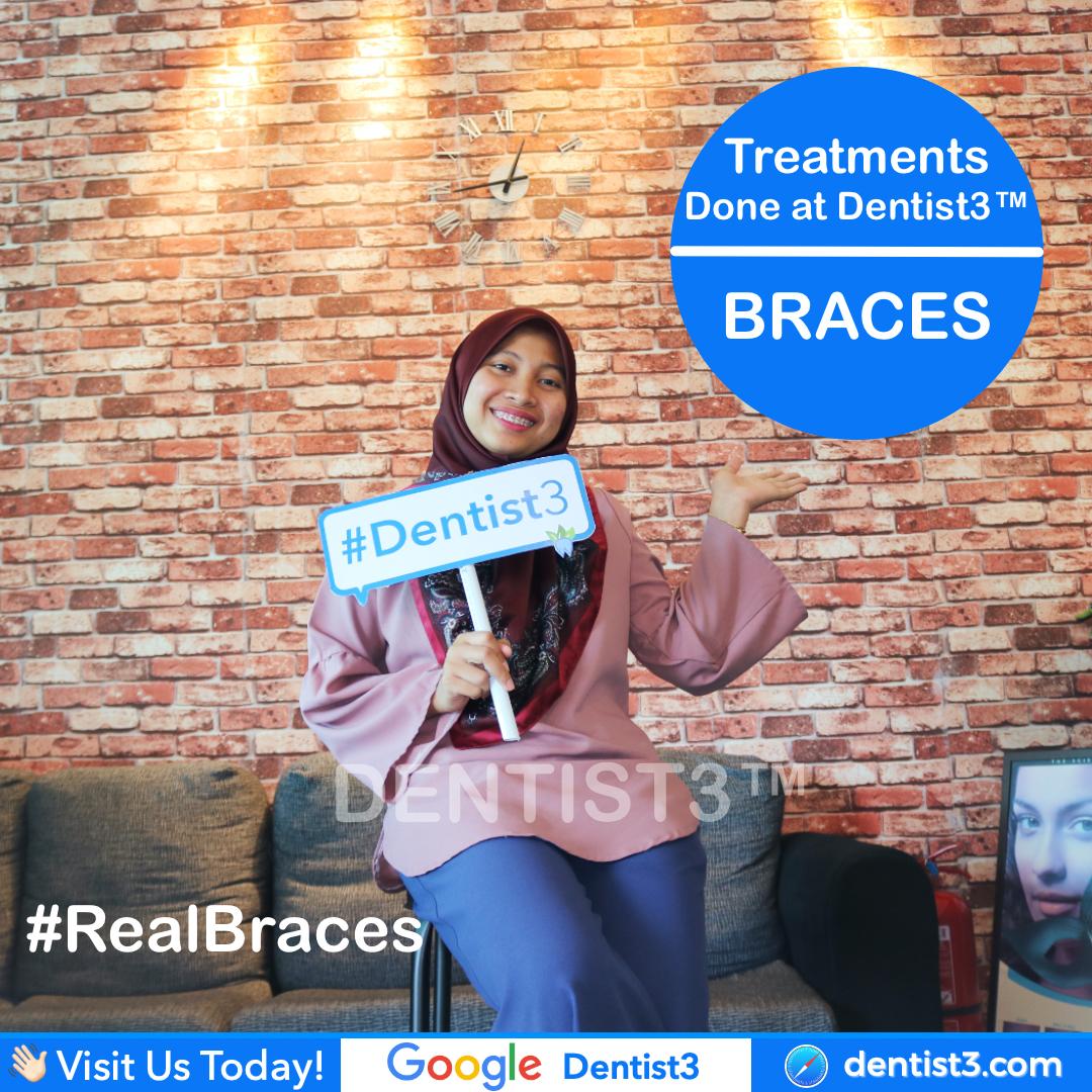braces-picture_copy.jpg