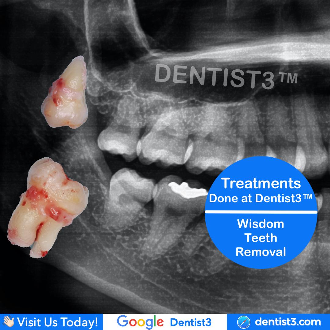 wisdom-tooth-4.jpg