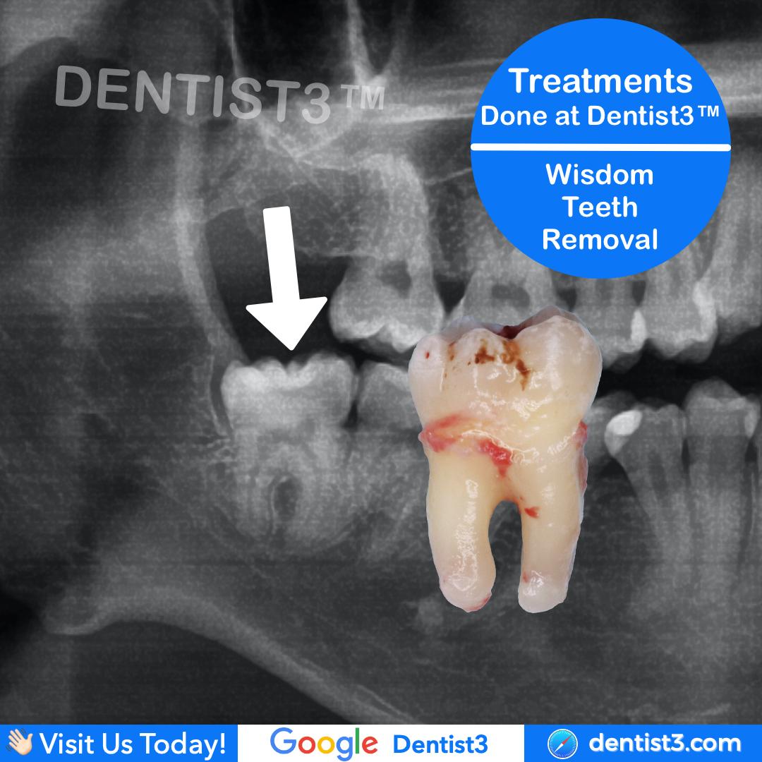 wisdom-tooth-removal_copy.jpg