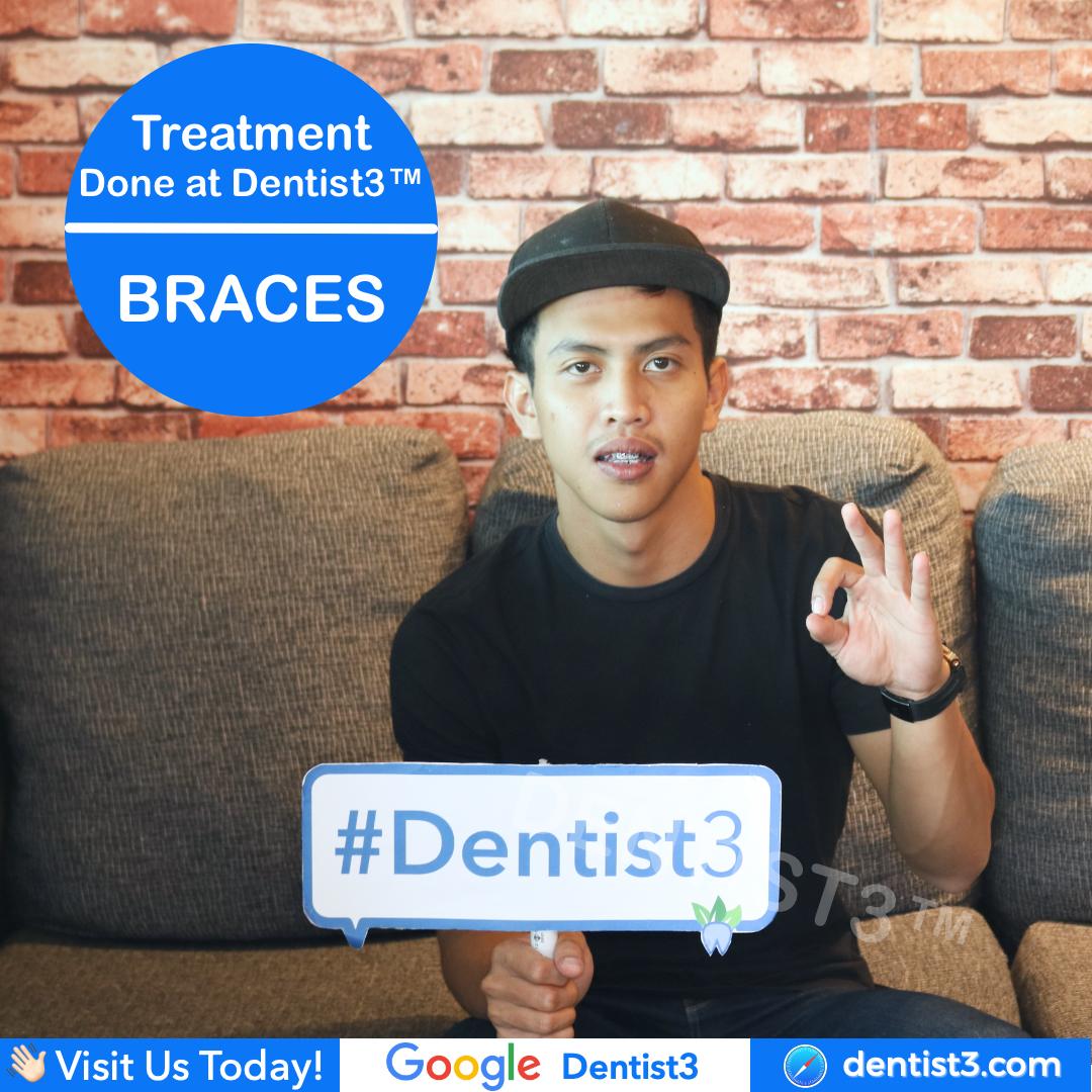 braces-2_copy_2.jpg