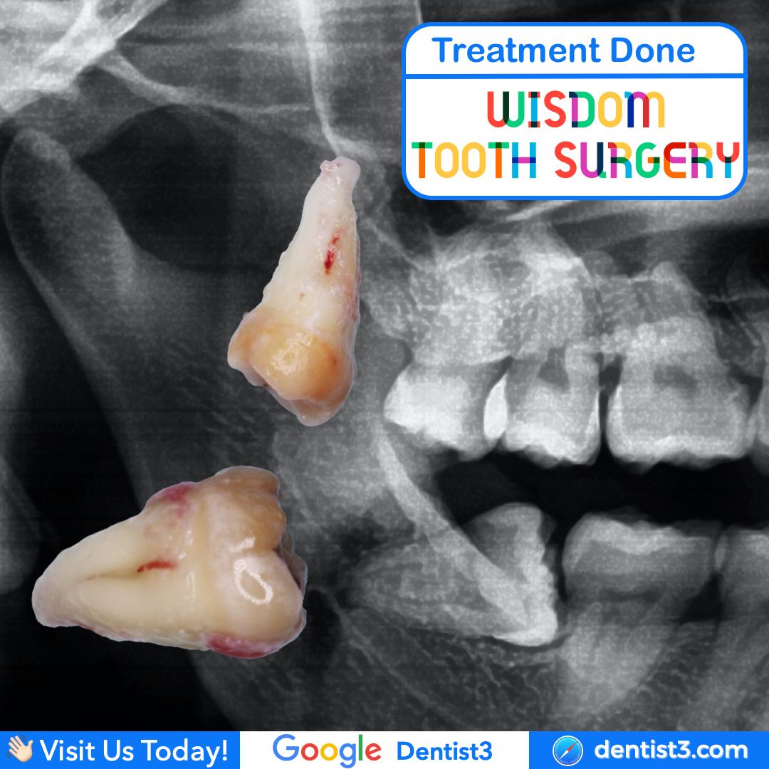 wisdom-tooth-surgery_copy_2.jpg