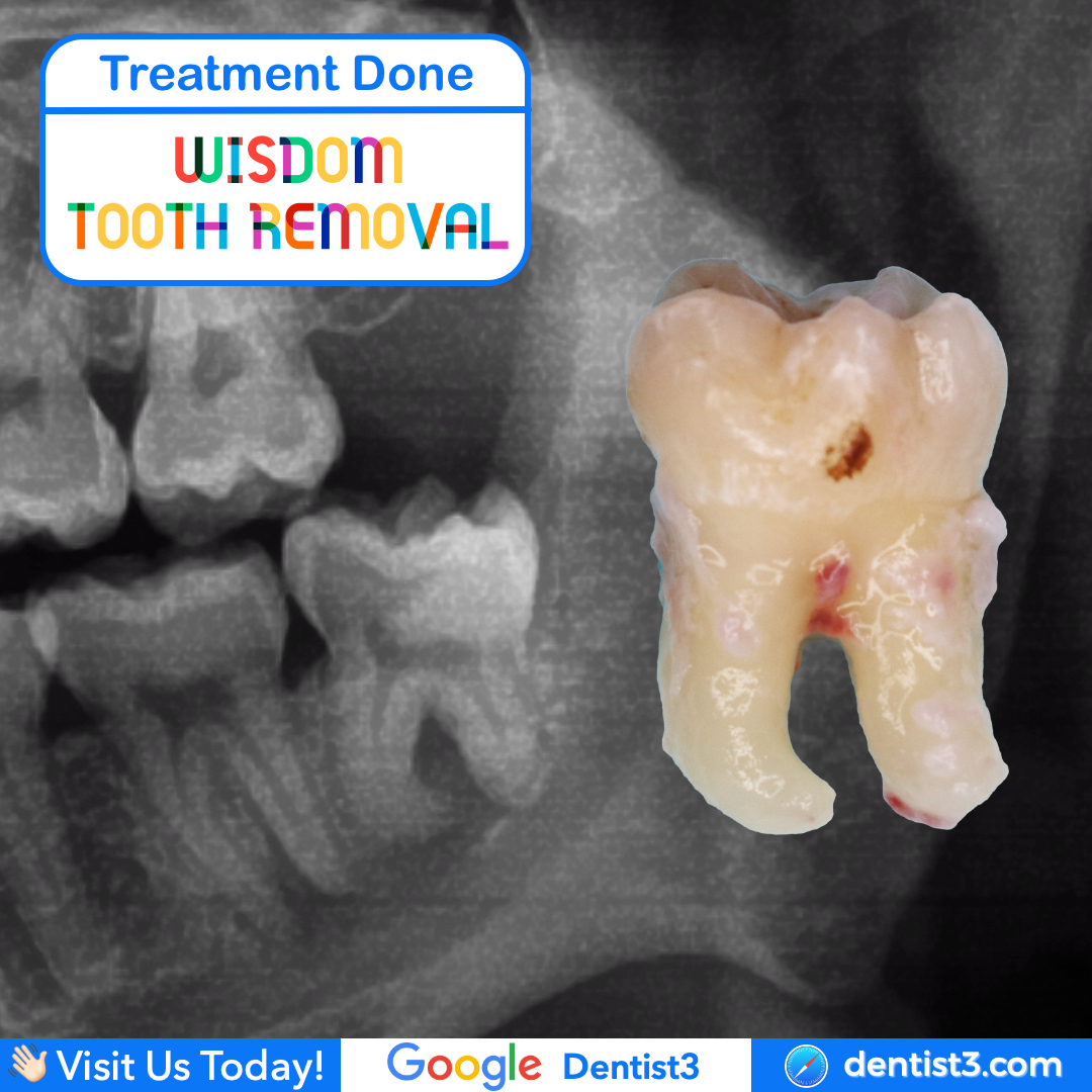 wisdom-tooth-2.jpg