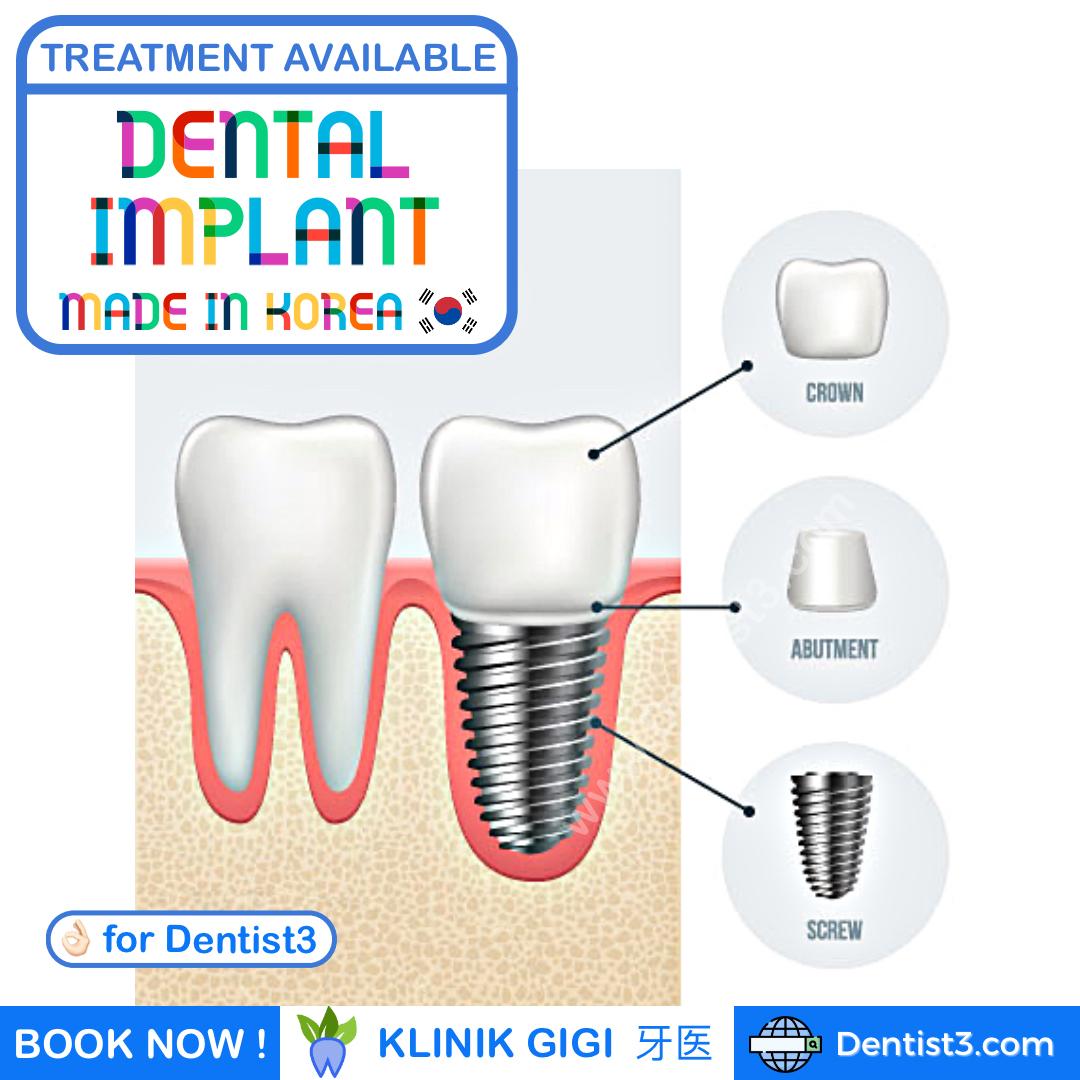 dental-implant-malaysia-1.jpg