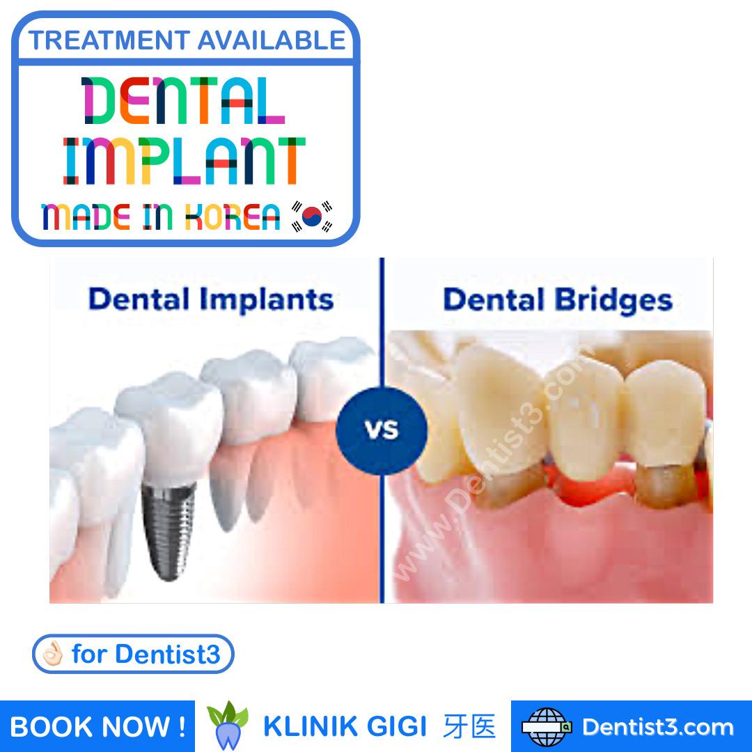 dental-implant-malaysia-2.jpg