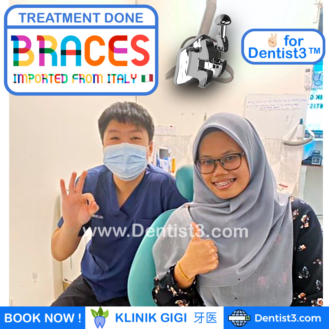 braces-21-feb-2021-dentist3.jpg