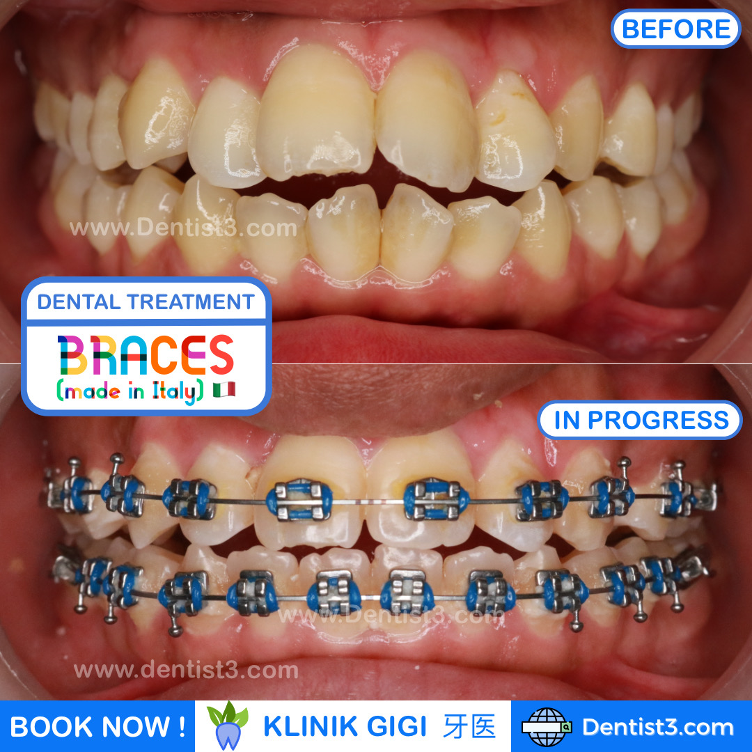 braces-before-after-2021.jpg